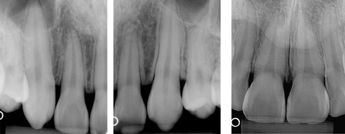 RADIOGRAFIAS-INTRABUCAIS---PERIAPICAL
